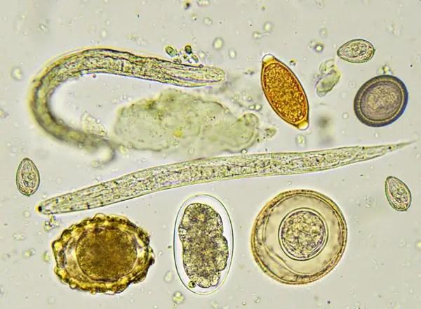 Enterobiosis protozoa,