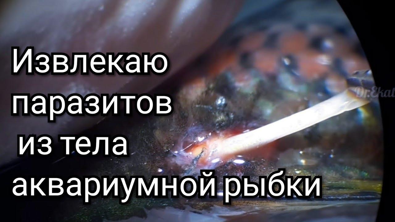 Tisztítsa meg a testet parazitákkal