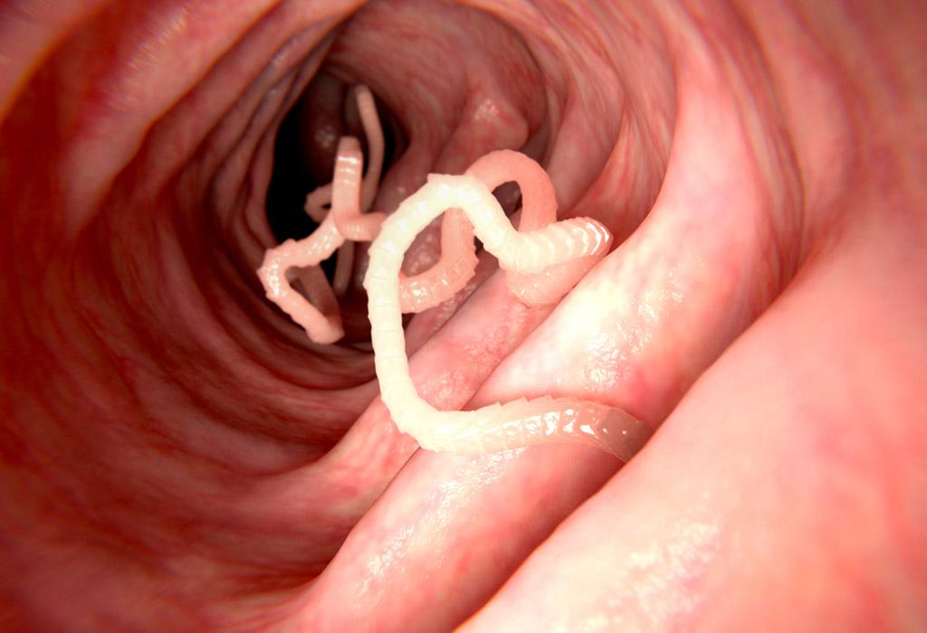 pinworms pápa baba féreg gyógyszer babaértékelésekhez
