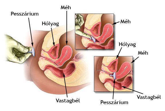 Diplococcusok kenetben férfiakban, Kategória: SZOLGÁLATI BETEGSÉGEK