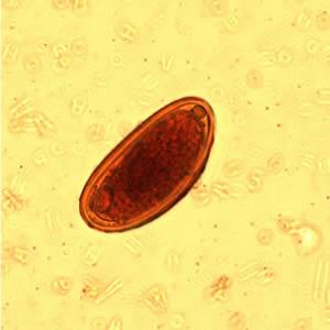 Enterobiasis etiológiája