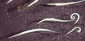 Pinworms a vékonybélben - andrea-design.hu