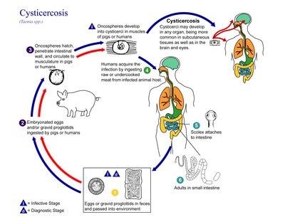 rossz lehelet és keserűség ankilostomiasis gyógyszerek
