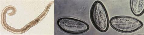 Pinworms, ahol megfertőződhet - A pinworms megfertőződnek