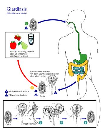 giardia synévo tabletták a paraziták gyerekeknek vélemények
