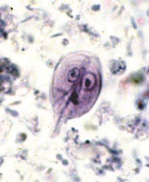 Giardia antigen stool - Cysty giardia u psa leczenie Giardia under microscope
