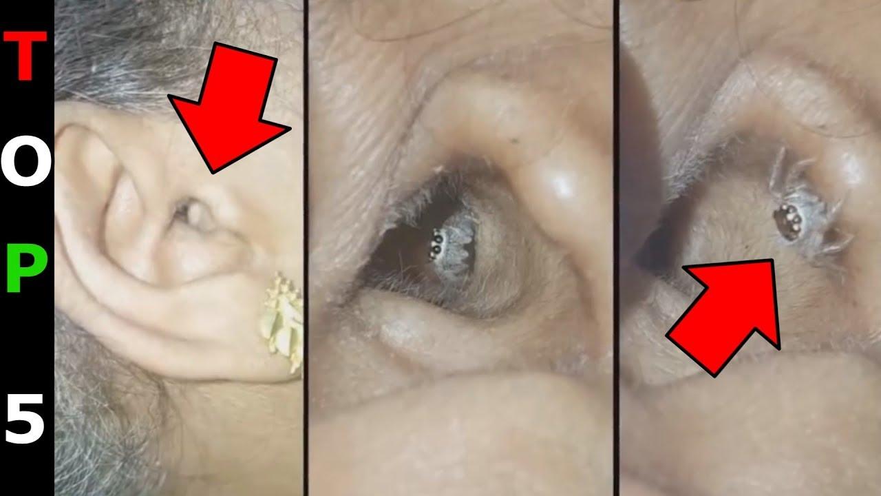 gyomorproblémák, rossz lehelet miatt hogyan lehet megtisztítani a paraziták máját gyógyszerekkel