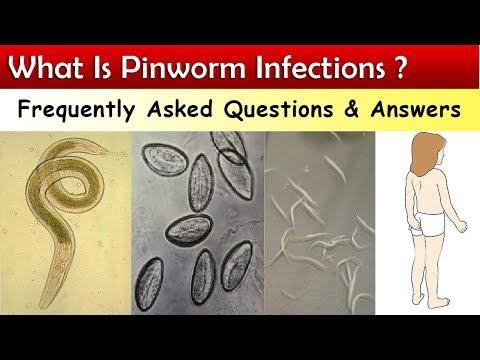 Hogyan lehet gyorsan kinyomni a pinworm et, Kelas nemathelminthes dan contohnya,