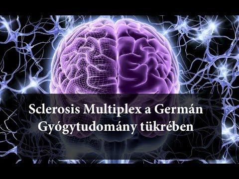 Kezelés sclerosis multiplexes férgekkel Sclerosis multiplexes férgek kezelése