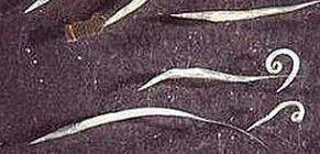 Pinworm gyertyák gyerekeknek Enterobiasis - a pinworms aktivitásának következménye Pinworm család