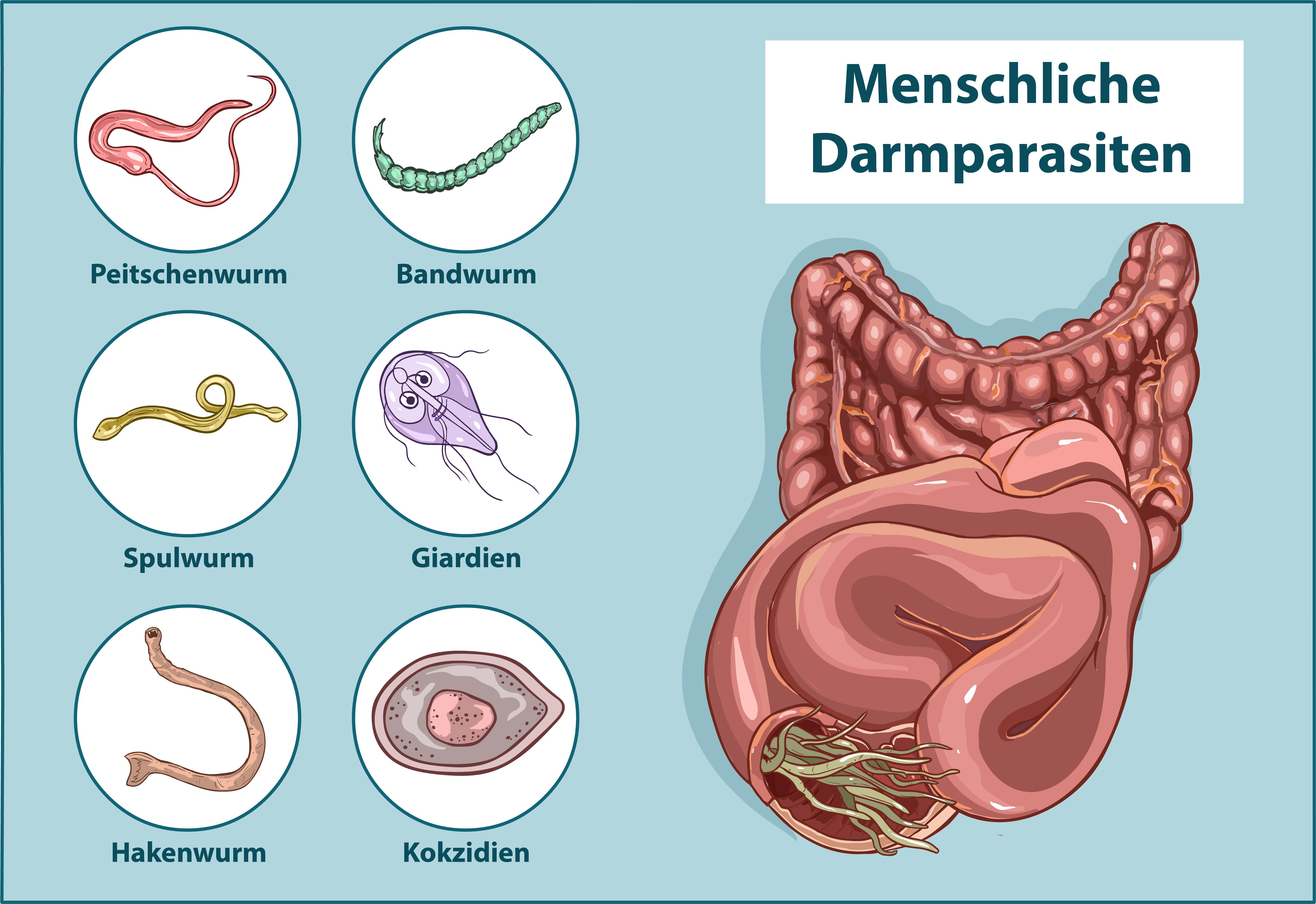 Hogyan lehet kezelni az aszcariasist terhes nőkben - andrea-design.hu, Giardien mensch medikamente