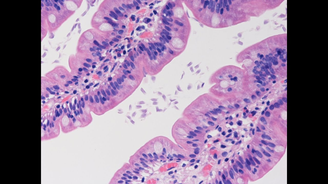 giardiasis histology