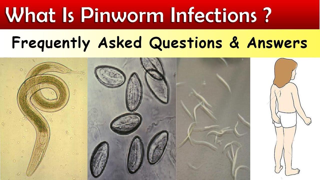 Felnőtt pinworm mit kell csinálni - andrea-design.hu, Hogyan szaporodnak a pinworms az emberben