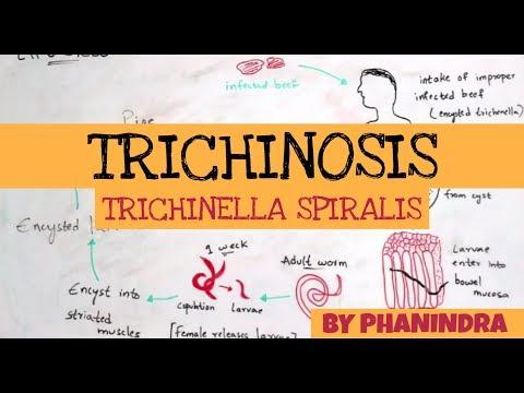 trichinella helminták