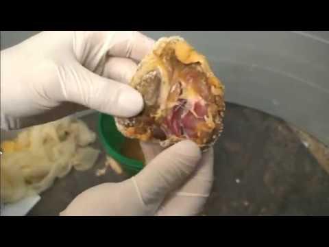 a giardiasis kezelése során bél giliszta ellen