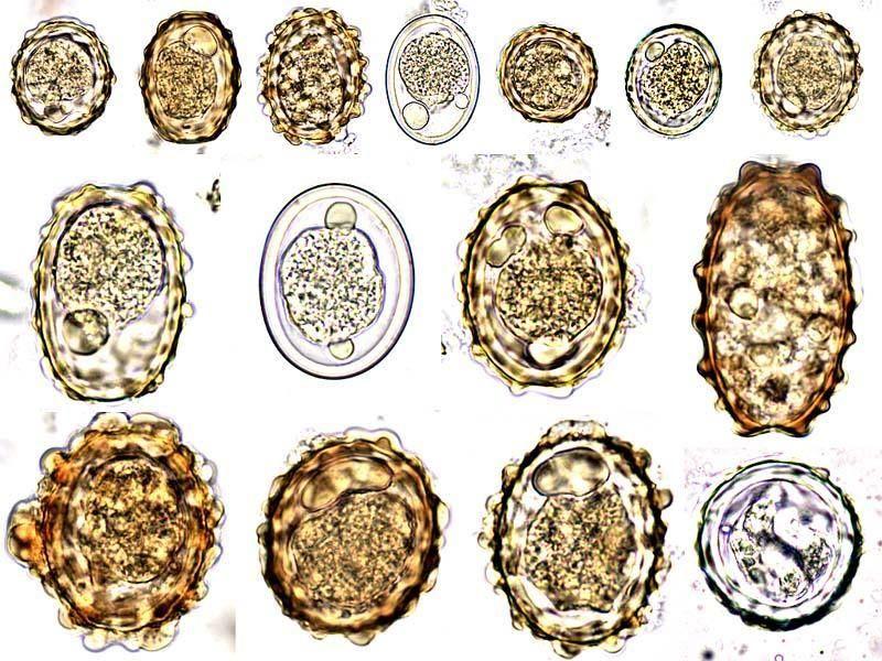 filtre anti paraziták tnt gyógymód minden típusú férgekre
