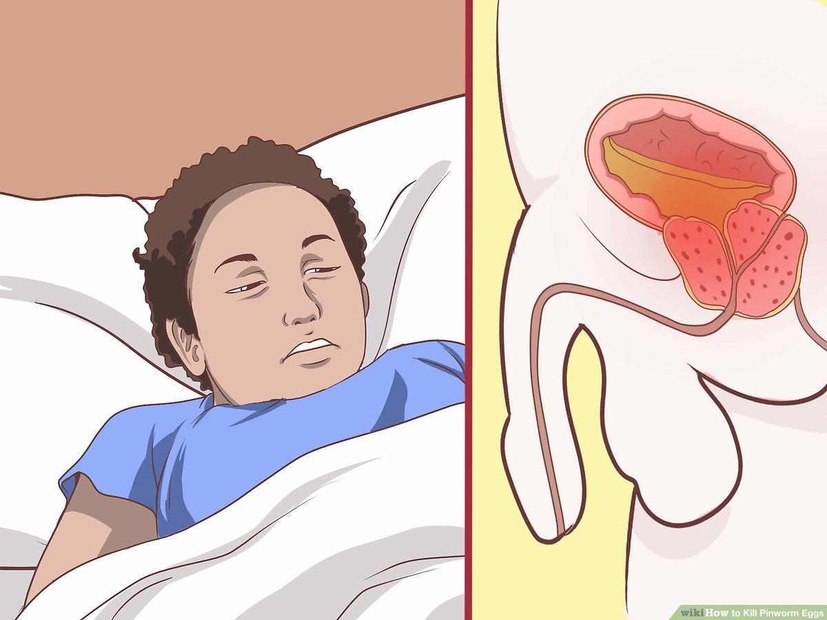 a pinworms kezelése gyermekekben piperazinnal