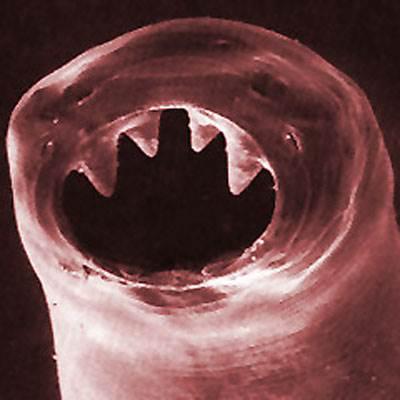bélféreg kialakulasa paraziták és hogyan lehet őket kiszabadítani