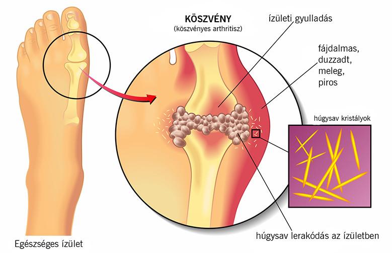 Helmintikus fertőzés tünetei, Az ekcéma tünetei