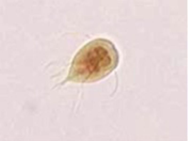 Giardia microscope, Diagnosing Giardia enterobiosis tünetek felnőtteknél