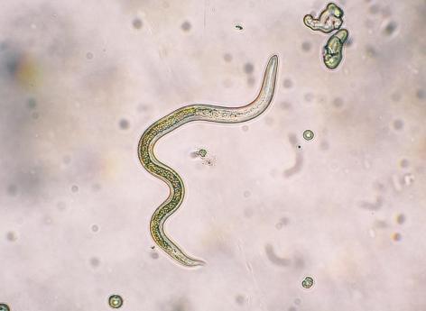 les vers parasites de l homme