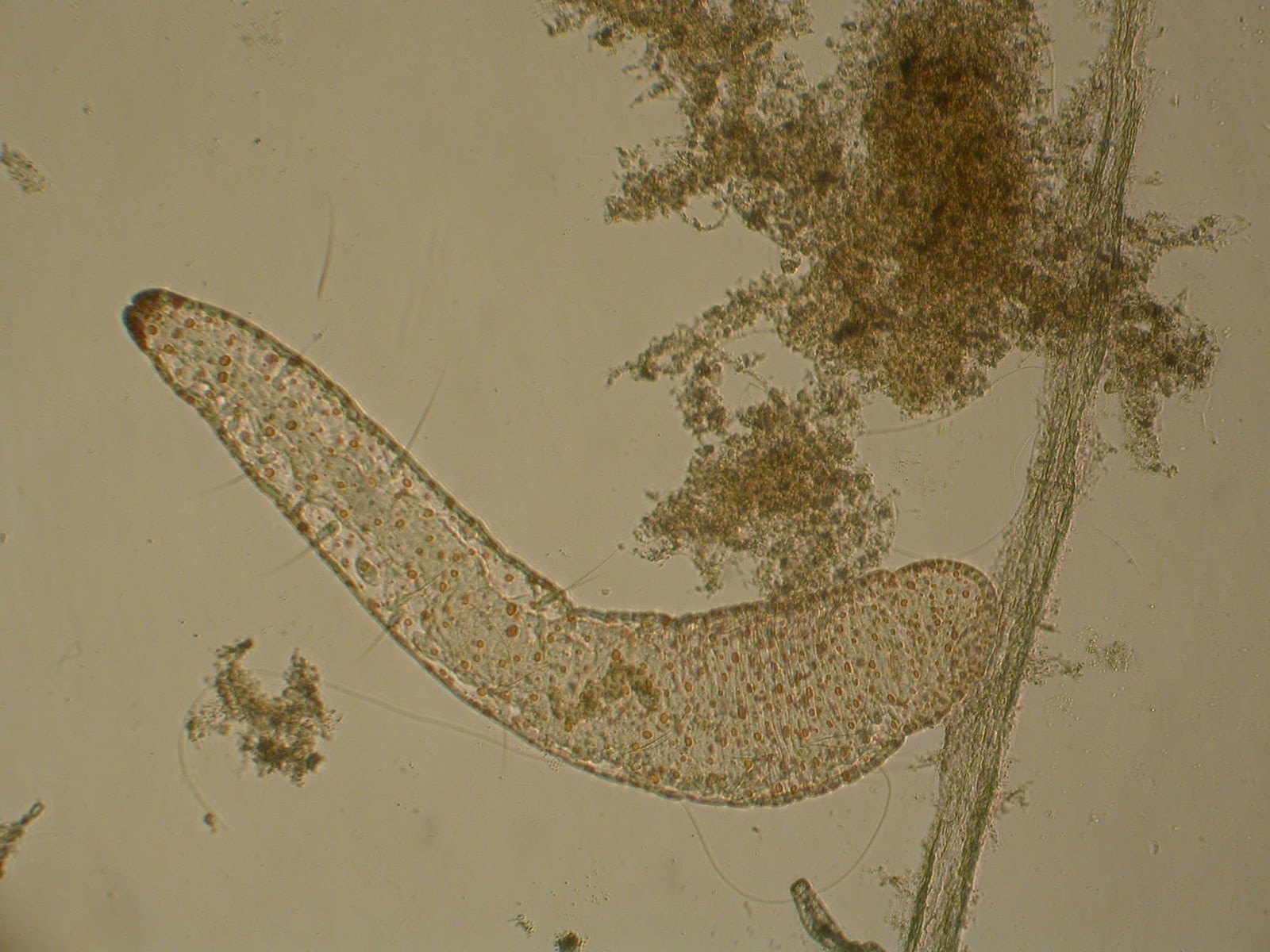 férgek, mint a rajzok az észlelt rovar paraziták megsemmisítése