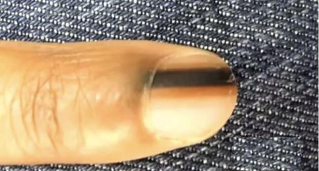 képek a kakukból, parazitákkal fehér magokat a széklet parazitákban