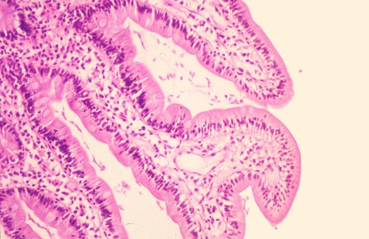 giardiasis histology hewan invertebrata platyhelminthes