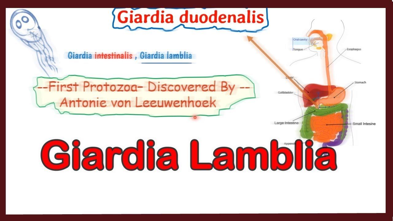 Giardiasis ízületek. Ízületi fájdalom giardiasissal. Giardiasis és ízületi fájdalmak