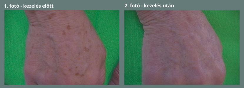 Orvosság paraziták ellen az emberben Típusú helminták emberben fotókezelés