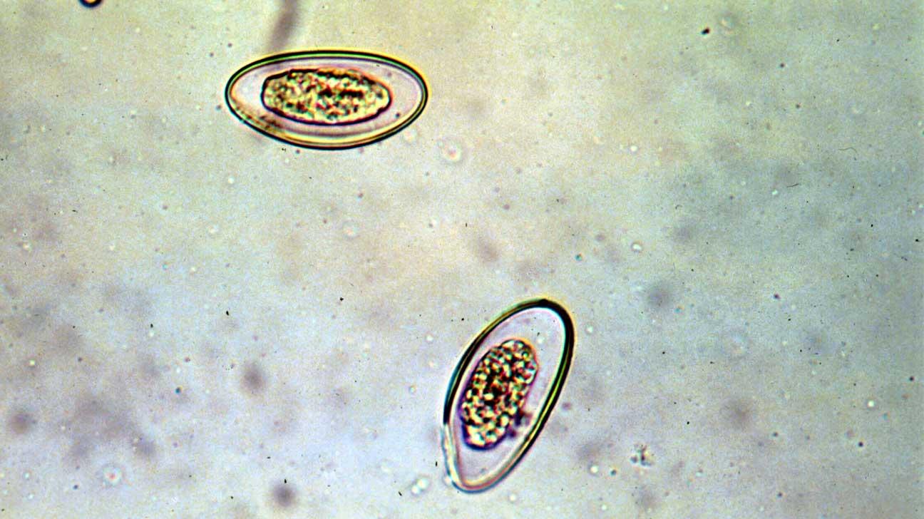 hogyan lehet maratni a pinworms et új élet elixír parazitaellenes véleményeket készít