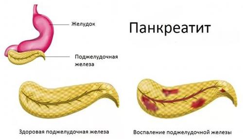 kén a paraziták kezelésében groseillers paraziták