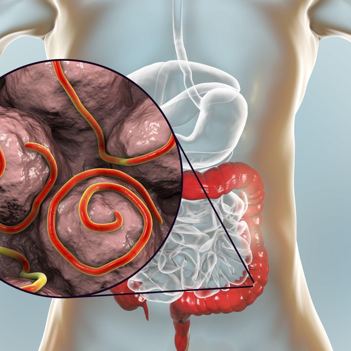 Melyik szervekben élnek a pinworms- ek