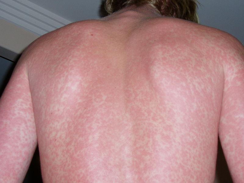 pontos allergia vizsgálat Salvia mérőműszerrel - Joalis féle módszerrel