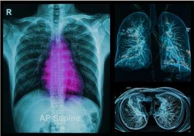 tüdőrák jelei