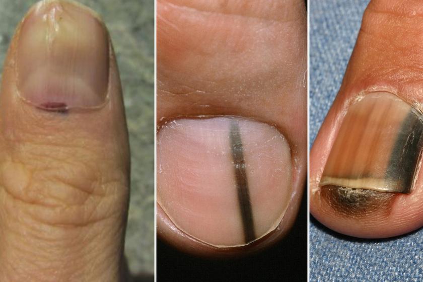 fekete csíkok a körmök alatt paraziták