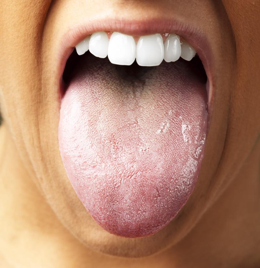 Lepedék a nyelven és a rossz lehelet. Mi okozhat lepedékes nyelvet?
